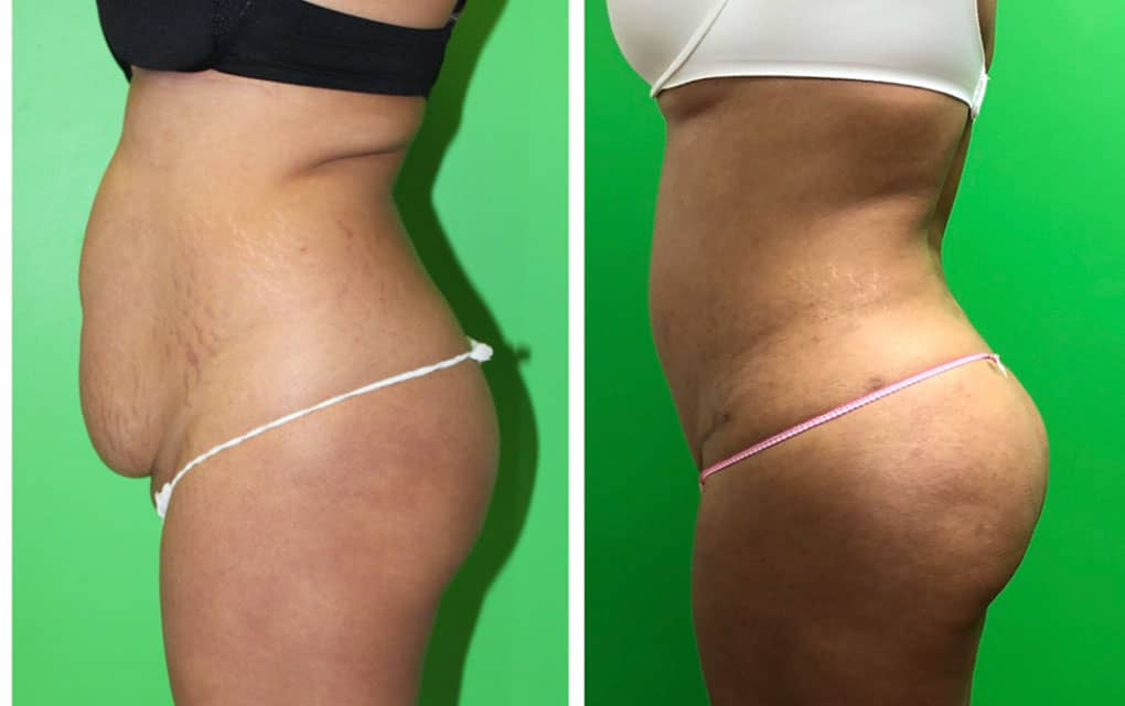 liposuction with BBL
