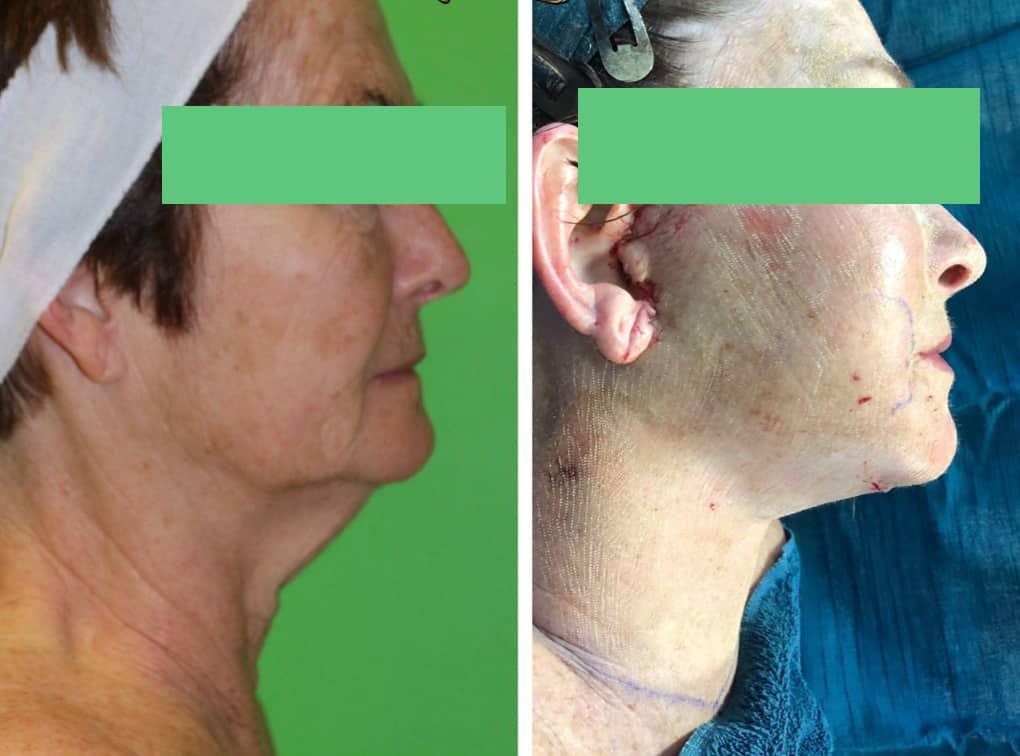 min-face lift, DOT laser resurfacing