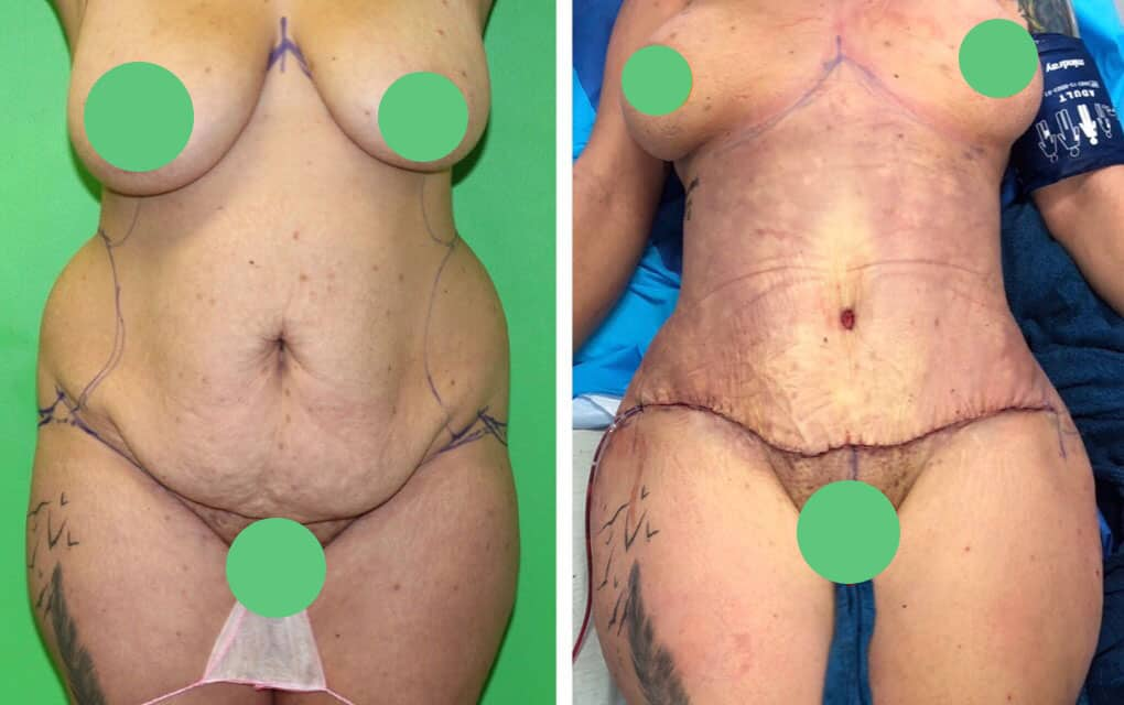 lipo-abdominoplasty