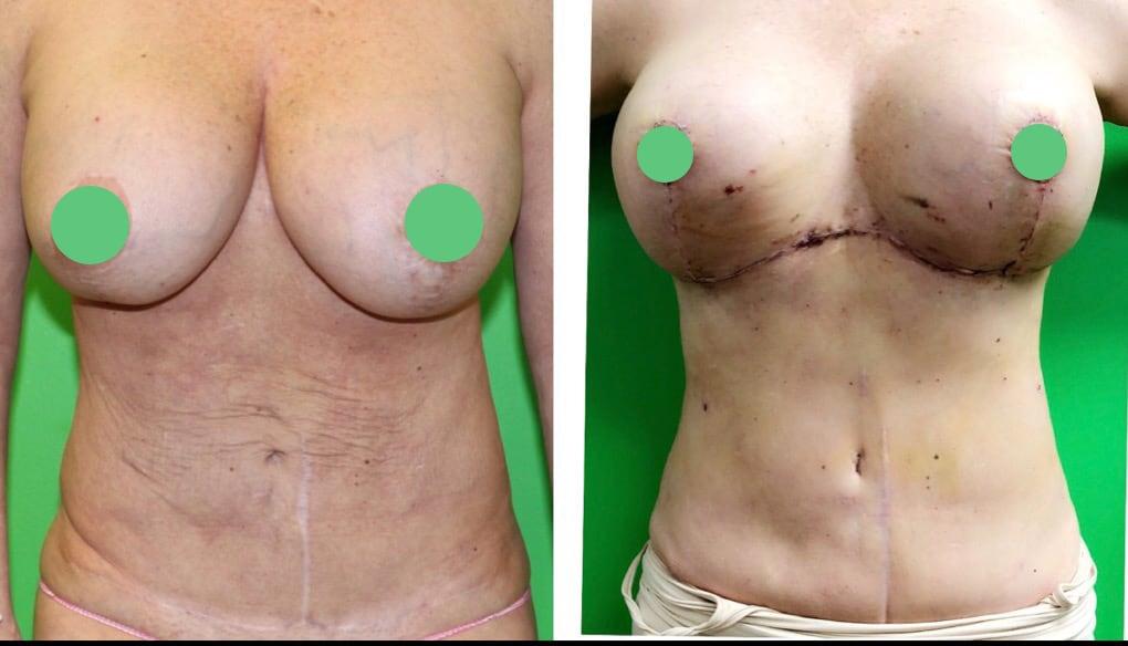 breast augmentation/lipo-abdominoplasty