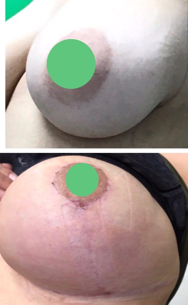 breast augmentation/breast lift