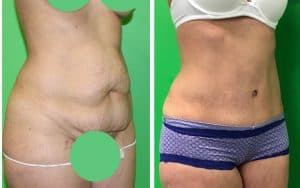 lipo-abdominoplasty