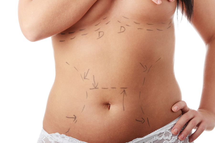 8 myths about cosmetic surgery