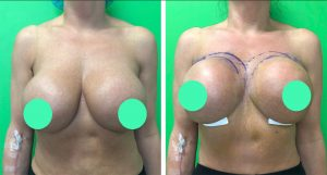 internal breast implant lift